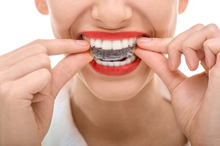 Why Clear Aligners In Pleasant Grove Are So Convenient