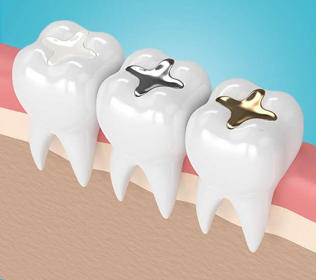 Pleasant Grove Composite Fillings