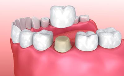 Crowns And Bridges Can Improve Your Dental Structure