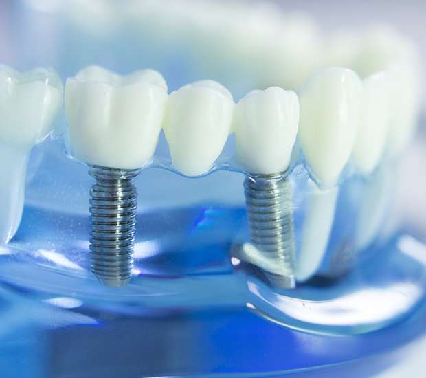 Pleasant Grove Dental Implants