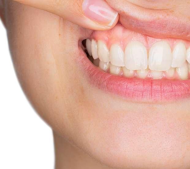 Pleasant Grove Gum Disease