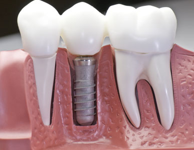 An Implant Restoration Treatment In Pleasant Grove Can Improve Your Smile And The Function Of Your Teeth