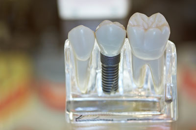Implant Supported Dentistry Provides Numerous Options For Tooth Replacement