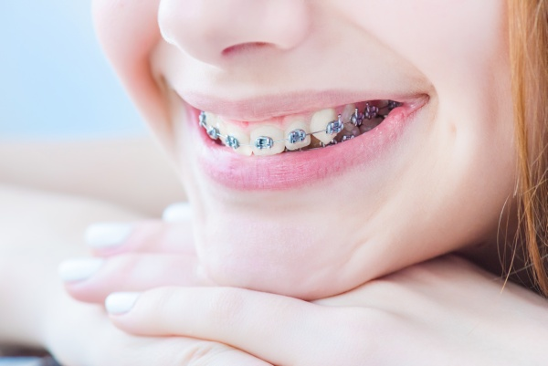 What Are Dental Appliances?