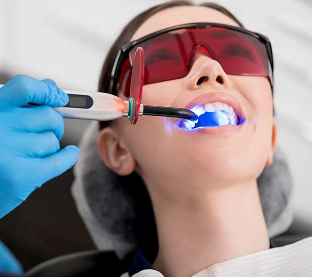 Pleasant Grove Professional Teeth Whitening