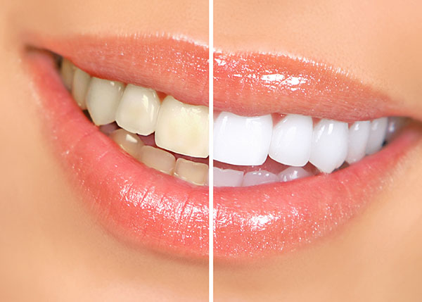 Teeth Whitening And Keeping Your Teeth Sparkling White